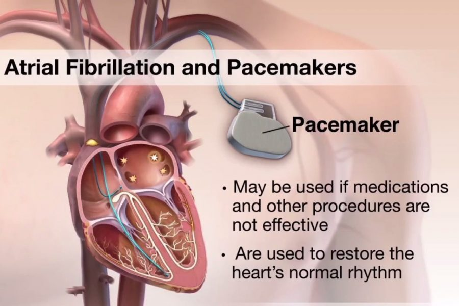 Atrial Fibrillation and Pacemakers