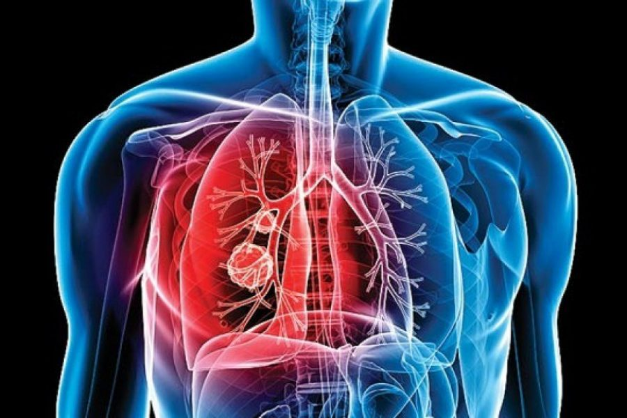 A new substance is able to cure Tuberculosis effectively: Research