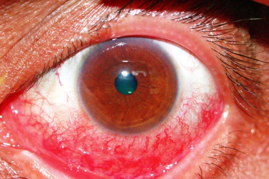 What is subconjunctival hemorrhage