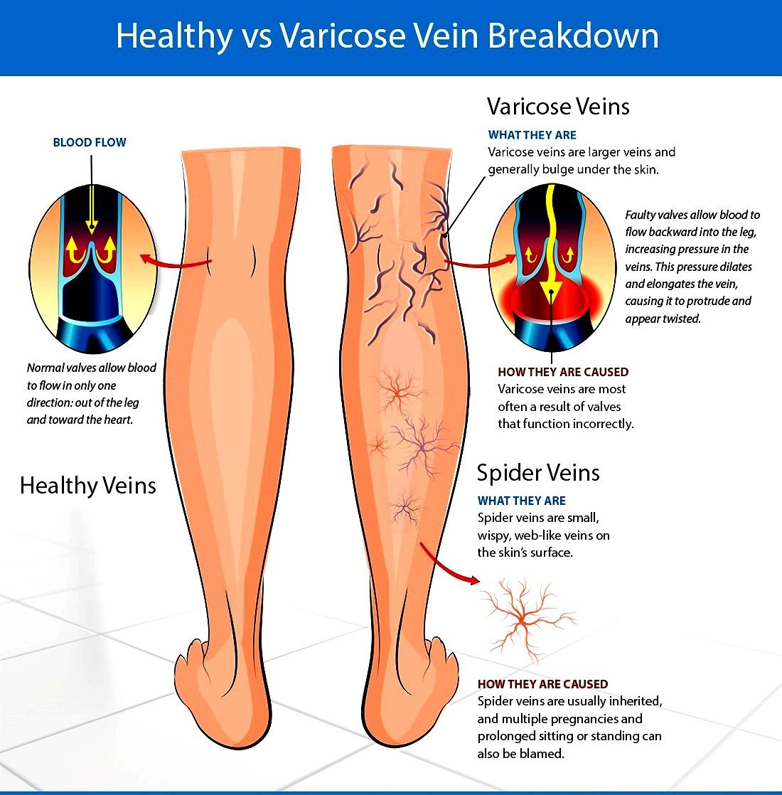 What are varicose veins during pregnancy